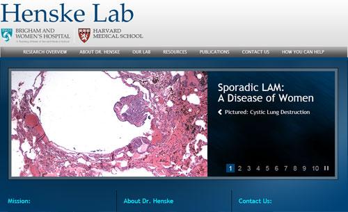 Henske Lab Home Page