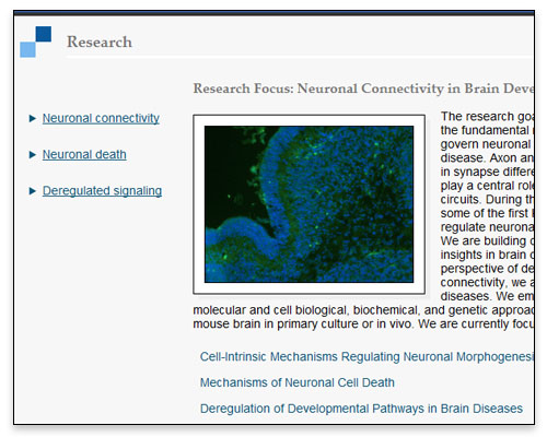 The Bonni Lab - Lab Research Page Close-up
